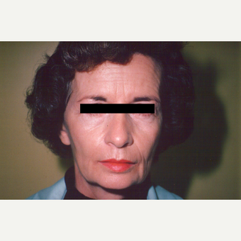 55-64 year old woman treated with Facelift before 3538984