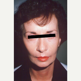 55-64 year old woman treated with Facelift after 3538984