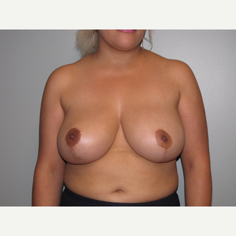 25-34 year old woman treated with Breast Reduction after 3663416