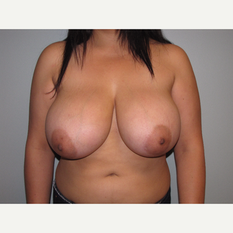 25-34 year old woman treated with Breast Reduction before 3663416