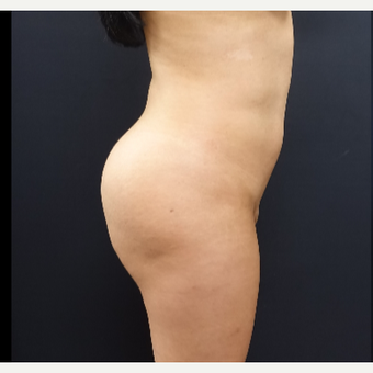 25-34 year old woman treated with Butt Augmentation before 3286193