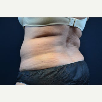 55-64 year old woman treated with CoolSculpting before 2404299