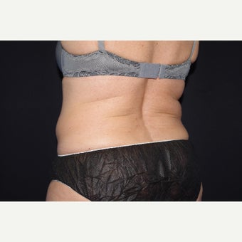 55-64 year old woman treated with CoolSculpting after 2404299