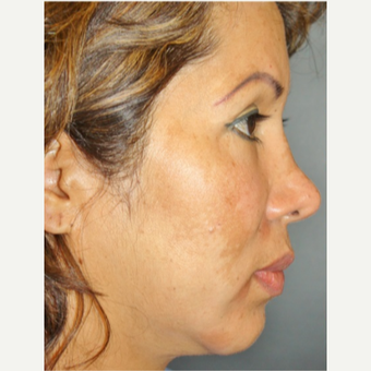 45-54 year old woman treated with Revision Rhinoplasty before 3055550