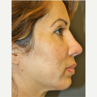 45-54 year old woman treated with Revision Rhinoplasty after 3055550