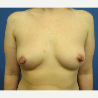 35-44 year old woman treated with Breast Augmentation before 1826091