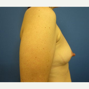 35-44 year old woman treated with Breast Augmentation 1826091