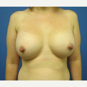 35-44 year old woman treated with Breast Augmentation after 1826091
