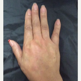 75 and up year old woman treated with Radiesse for hand rejuvenation after 3382626