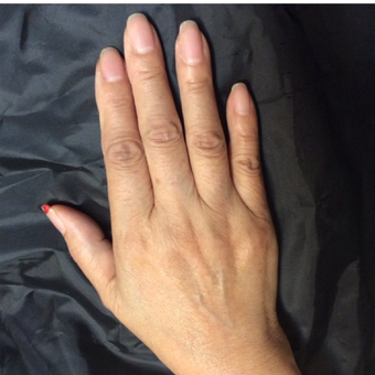 75 and up year old woman treated with Radiesse for hand rejuvenation before 3382626