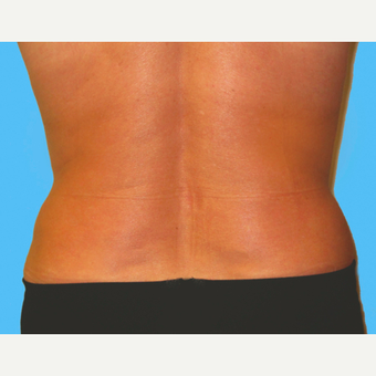 Liposuction after 3810567