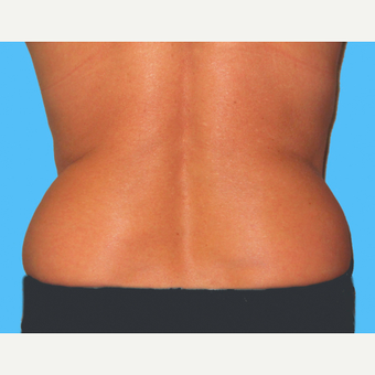 Liposuction before 3810567