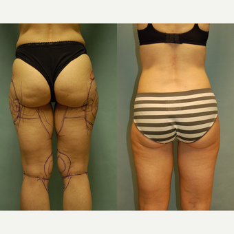 50 year old woman one year after Smartlipo of the inner and outer thighs, medial thigh and knees before 3261465