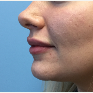 25-34 year old woman treated with Lip Augmentation after 3679411