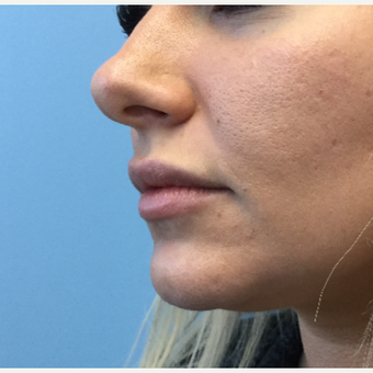 25-34 year old woman treated with Lip Augmentation before 3679411