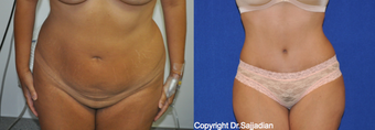 Tummy Tuck before 1245256