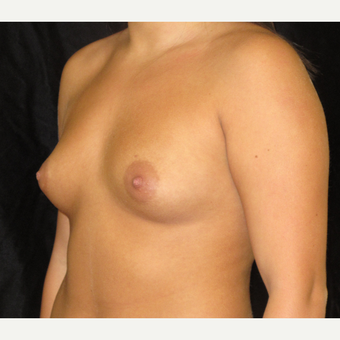 25-34 year old woman treated with Breast Augmentation before 3338581