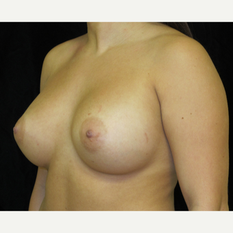 25-34 year old woman treated with Breast Augmentation after 3338581