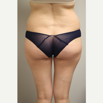 25-34 year old woman treated with Brazilian Butt Lift before 3651968