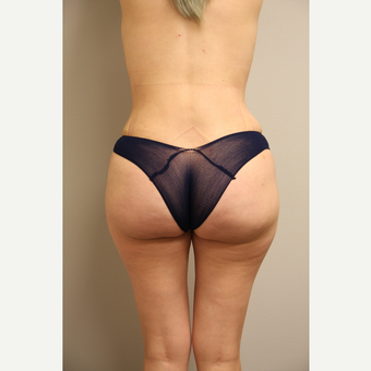25-34 year old woman treated with Brazilian Butt Lift after 3651968