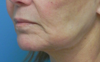 Treated with Juvederm to the upper and lower lips. before 1709054