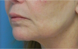 Treated with Juvederm to the upper and lower lips. after 1709054