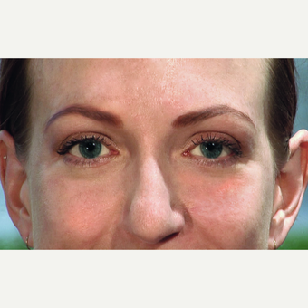 25-34 year old woman treated with Eyelid Surgery and Laser Skin Resurfacing after 3456370