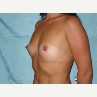 25-34 year old woman treated with Breast Implants before 3831606