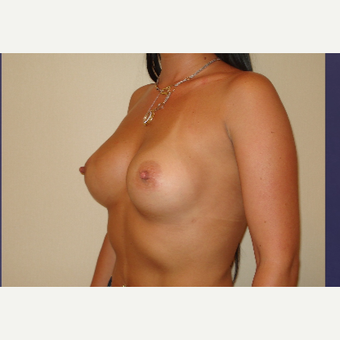 25-34 year old woman treated with Breast Implants after 3831606