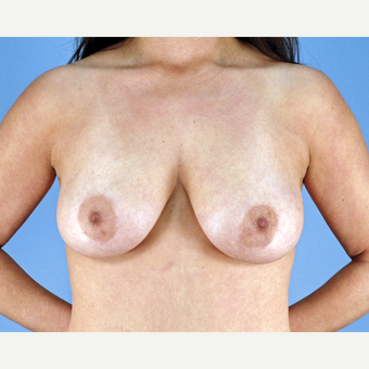 35-44 year old woman treated with Breast Lift before 3837630