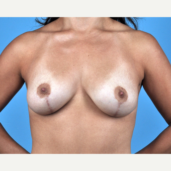 35-44 year old woman treated with Breast Lift after 3837630
