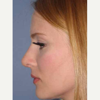 25-34 year old woman treated with Rhinoplasty after 3499708