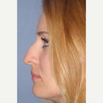 25-34 year old woman treated with Rhinoplasty before 3499708