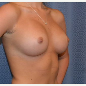 18-24 year old woman treated with Breast Augmentation after 3816456