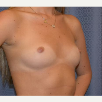 18-24 year old woman treated with Breast Augmentation before 3816456