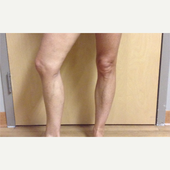 55-64 year old woman treated with Vein Treatment after 3287406