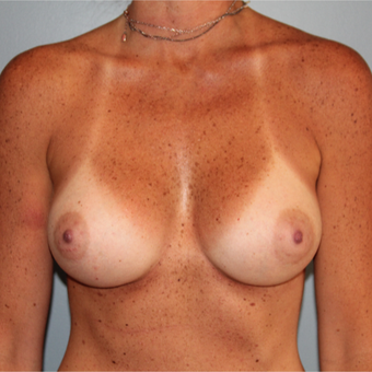 330cc Inspira Breast Implants after 3544392