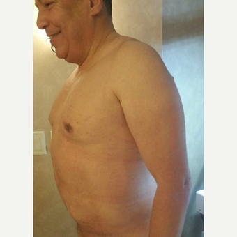 55-64 year old man treated with Tummy Tuck after 3749274