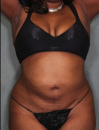 SmartLipo with Vaser Liposuction 36 Year Old Female