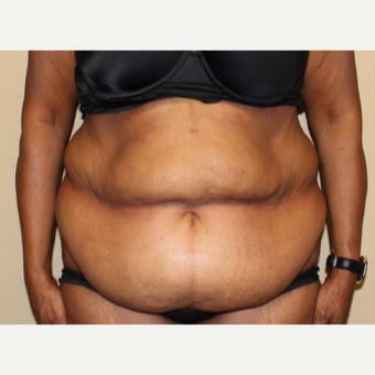 55-64 year old woman treated with Tummy Tuck before 3000716