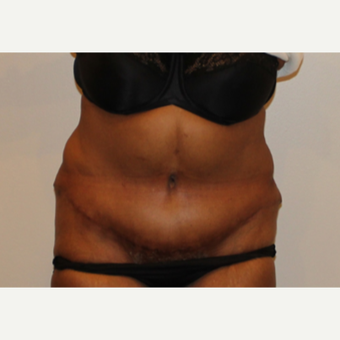 55-64 year old woman treated with Tummy Tuck after 3000716