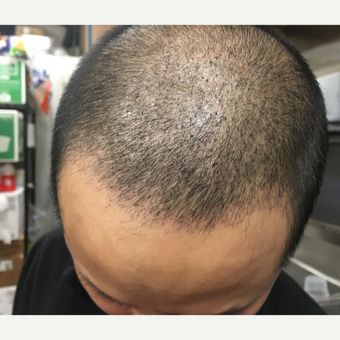 25-34 year old man treated with FUE Hair Transplant before 3618776