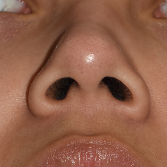 25-34 year old woman treated with Nostril Narrowing before 3166711