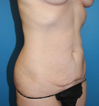 45-54 year old woman treated with Tummy Tuck before 3631192