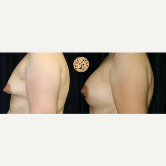 35-44 year old woman treated with Breast Lift after 3283479