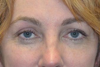 Browlift w hairline lowering, Upper eye blepharoplasty, Lower eyelid skin pinch, Fat transfer after 806961