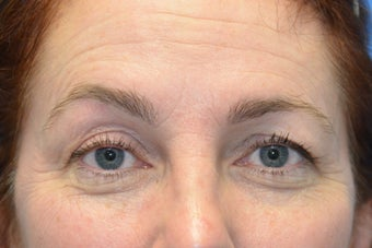 Browlift w hairline lowering, Upper eye blepharoplasty, Lower eyelid skin pinch, Fat transfer before 806961