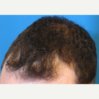 25-34 year old man treated with Hair Transplant before 3066676