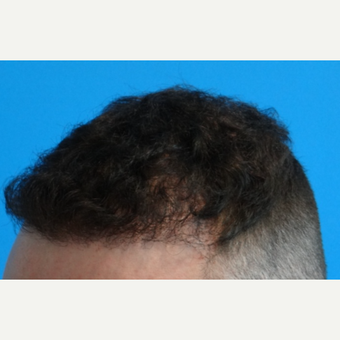 25-34 year old man treated with Hair Transplant after 3066676