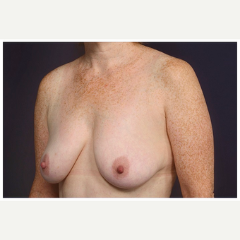 45-54 year old woman treated with Breast Lift before 3070810